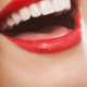 how-to-whiten-sensitive-teeth