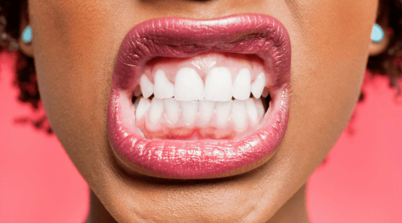 8 Tips To Improve Oral Health from Dry Mouth or Sjogren's!