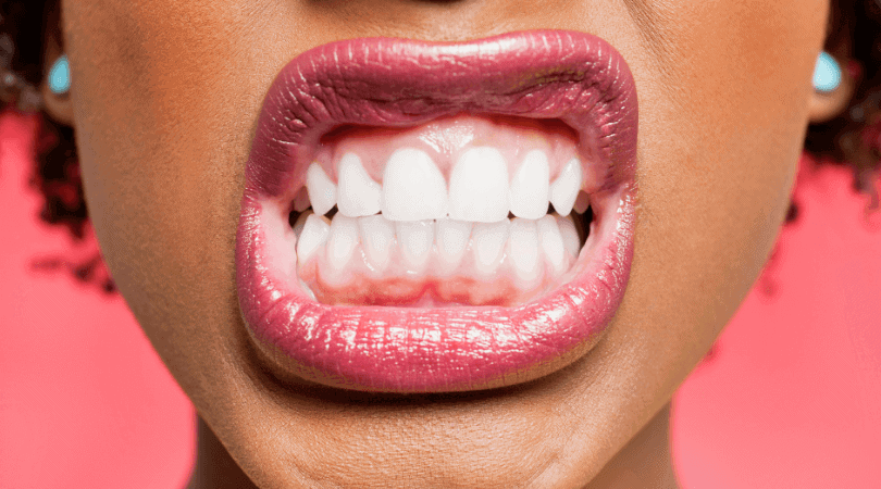 oral health for dry mouth and sjogren's